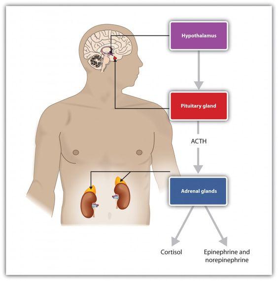 stress-schematisch